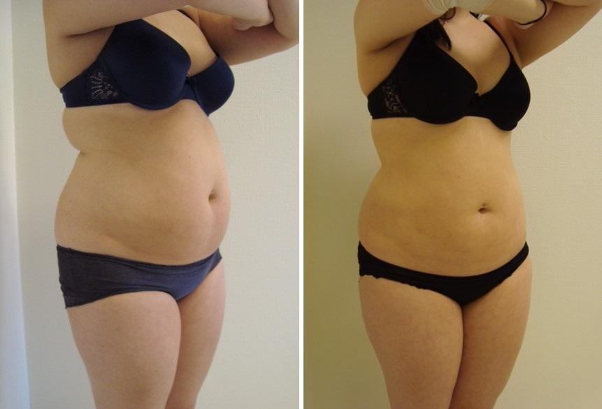 fettsugning mage billigt
